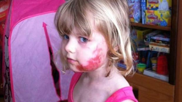 Plane Airbag Explodes, Injuring 4-Year-Old (Photos) Promo Image