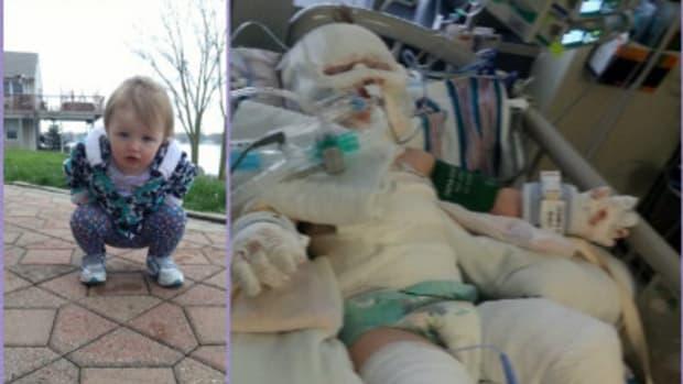 Toddler Gravely Injured After Falling Into Bonfire Pit Promo Image