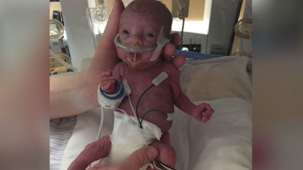 Baby Who Weighed 14 Ounces At Birth Makes Great Progress Promo Image
