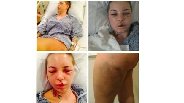 "Christy Mackinday, also known as Christy Mack, shared photos on Twitter after ""War Machine"" allegedly assaulted her."