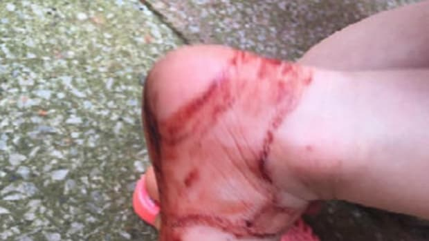 Parents Issue Warning After Popular Shoe Leaves Daughter's Foot A Bloody Mess Promo Image