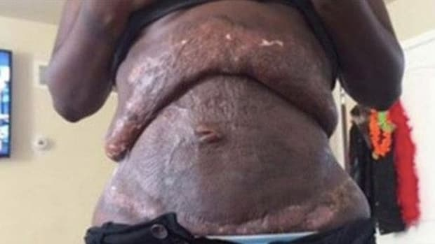 Mother Goes In For Simple Surgery, Wakes Up Looking Like This (Photo) Promo Image