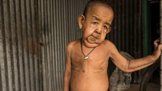 Rare Disorder Makes 4-Year-Old Boy Look Old (Photos) Promo Image