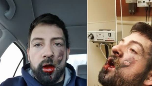 E-Cigarette Explodes, Man Loses 7 Teeth Promo Image