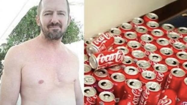 Man's Body Undergoes Extreme Change After Drinking 300 Cans Of Coke In 30 Days (Photos) Promo Image