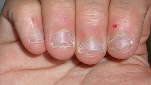 Doctors Issue Dire Warning After Man Dies Of Nail Biting Habit Promo Image