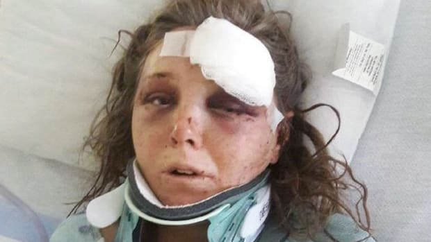 Woman Speaks Out About Domestic Abuse After Attack Promo Image