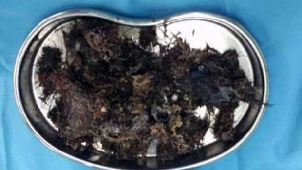 Doctors Remove Giant Hairball From Girl's Stomach (Photo) Promo Image