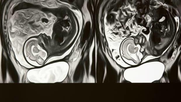 Strange Image Appears On Pregnant Woman's MRI Promo Image