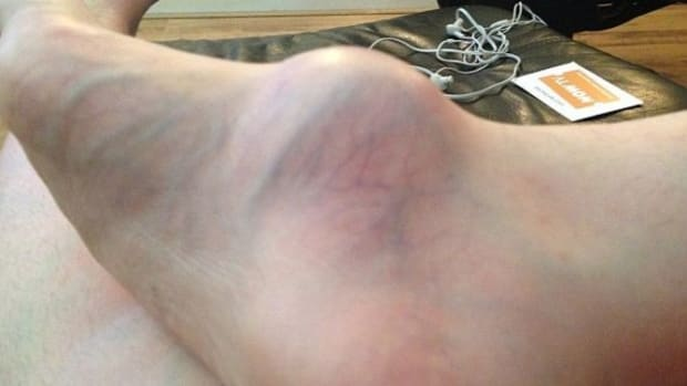 Woman Visits Doctor For Swollen Foot, Gets Biggest Shock Of Her Life (Photos) Promo Image