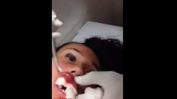 Young Woman Finally Discovers Why Her Lip Swelled Up (Video) Promo Image