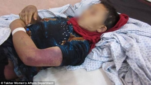 Afghan Man Mutilates Genitals Of Pregnant Wife Promo Image