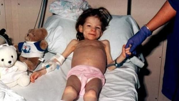 The 25-Pound 8-Year-Old: Little Girl Mercilessly Tortured By Her Own Parents For Years Promo Image