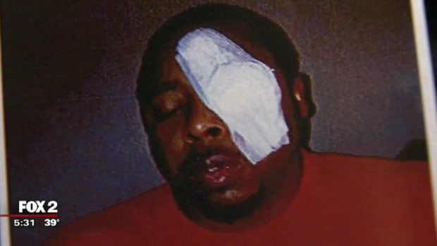 Black Man Beaten By Police, Loses Vision In One Eye (Video) Promo Image