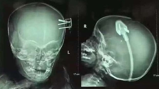 Doctors Remove Power Plug From Toddler's Head (Photos) Promo Image