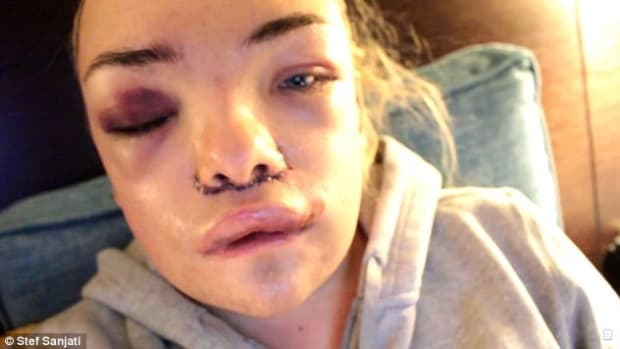 Transgender Woman Spends $33,000 On Surgery (Photos) Promo Image