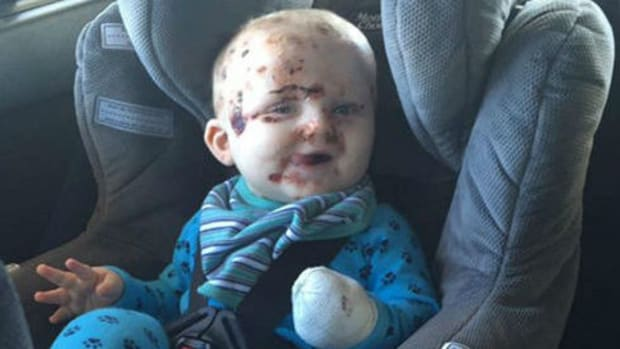 Mom Warns Others After Toddler Gets Chickenpox (Photos) Promo Image