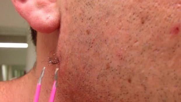 Man Shows The World What Happens When You Extract An Ingrown Hair (Video) Promo Image