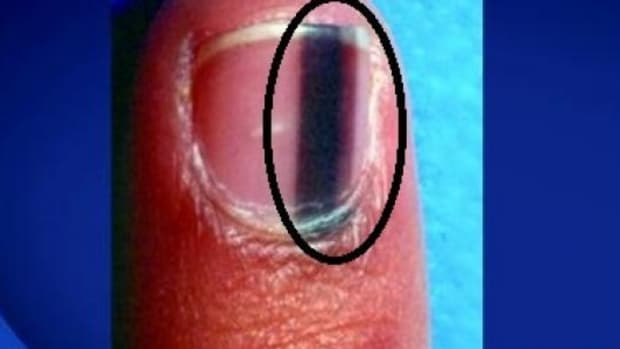 Here's What It Means When Someone Has A Black Line Like This On Their Nail (Photo) Promo Image