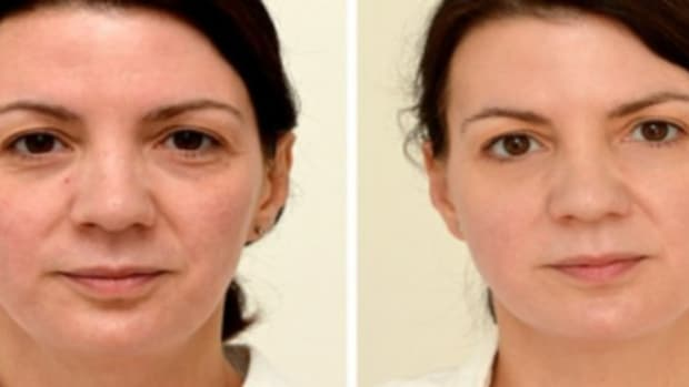 Woman's Experiment With Drinking A Gallon Of Water A Day For A Month Has Surprising Results (Photos) Promo Image