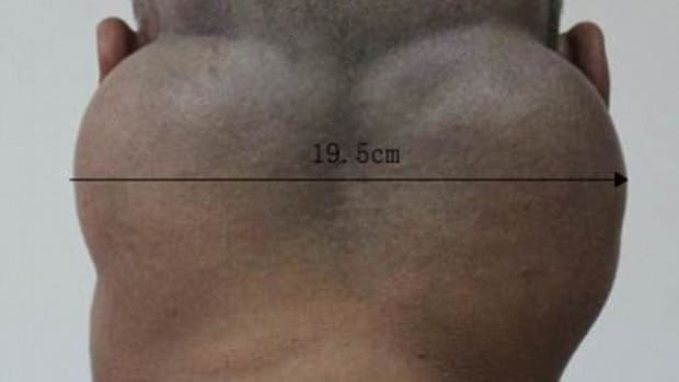 Everyday Habit Causes This To Form On Man's Neck (Photos) Promo Image