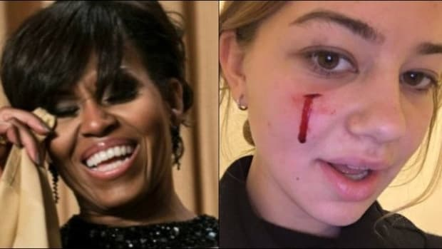 People Upset About What Michelle Obama Did With Dog Who Bit Girl's Face (Video) Promo Image