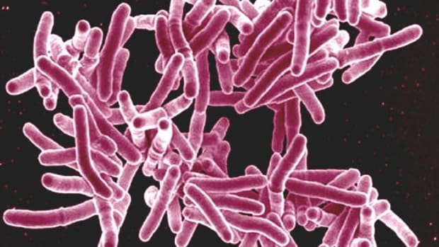 17 Infected, 6 Dead In Minnesota Tuberculosis Outbreak Promo Image