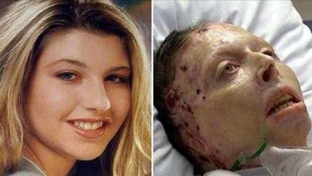 Unfortunate Updates 2 Years After Woman Was Burned By Ex (Photos) Promo Image