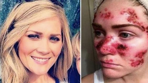 Woman Shares Troubling Selfie To Help End Trend That Nearly Cost Her Life (Photos) Promo Image