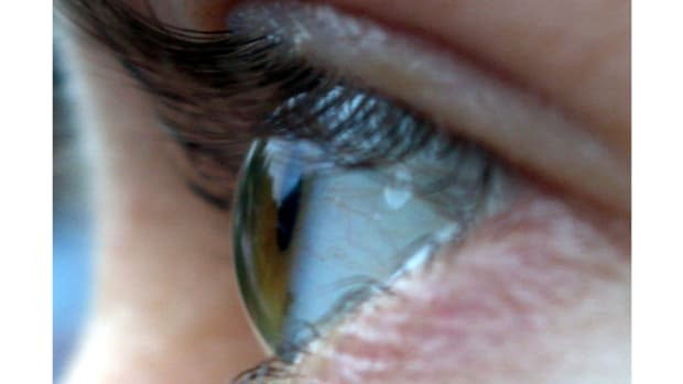 Report: Millions Suffer From Computer Vision Syndrome Promo Image