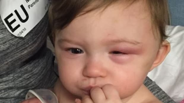 quinn, a missouri baby who was abused by her babysitter