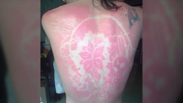 sunburnart1.jpeg