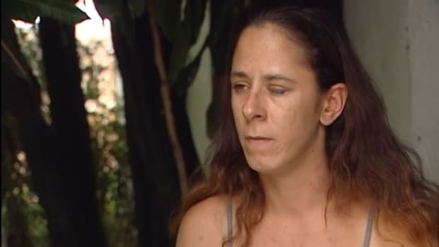 Katherine Gaydos with her left eye super-glued shut