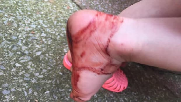 Sandals Leave Toddler's Foot A Bloody Mess Promo Image