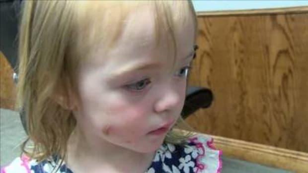 Photo of child's bite
