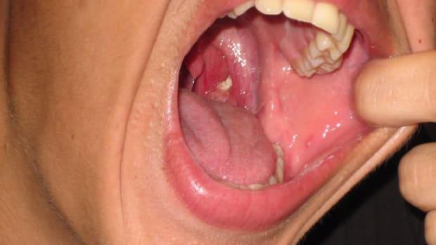 tonsilstones1.jpg