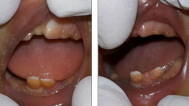Twin Girls In India Were Both Born With Fully Formed Teeth.