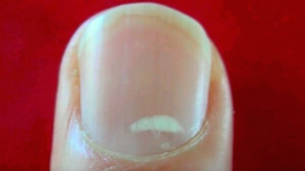 White Spots On Nails.