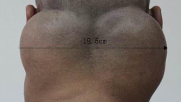Tumors on Hong's neck