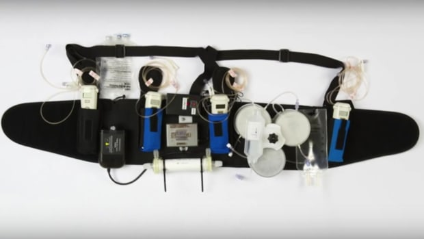 Wearable Artificial Kidney Passes First Trial (Video) Promo Image