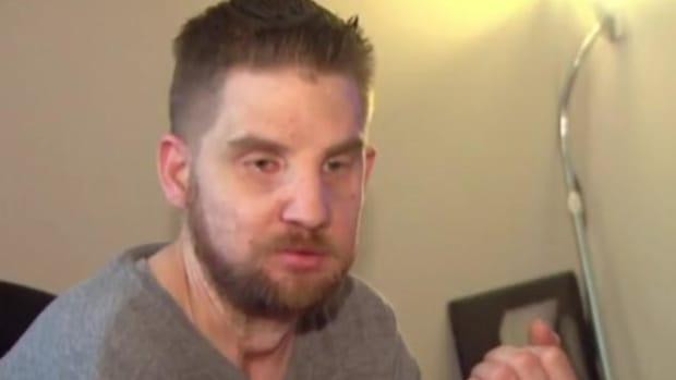 Veteran Saves Woman In Car Crash But Loses His Face Promo Image