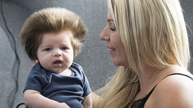 9-Week-Old Baby Grows Bouffant Hair (Photos) Promo Image