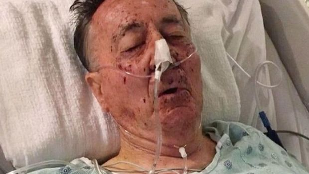 Police Shoot Elderly Man In His Own Living Room Promo Image