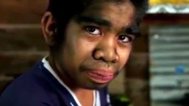 Teen Revered, Mocked For Werewolf Syndrome (Video) Promo Image