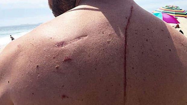 Eugene Finney Shark Attack.