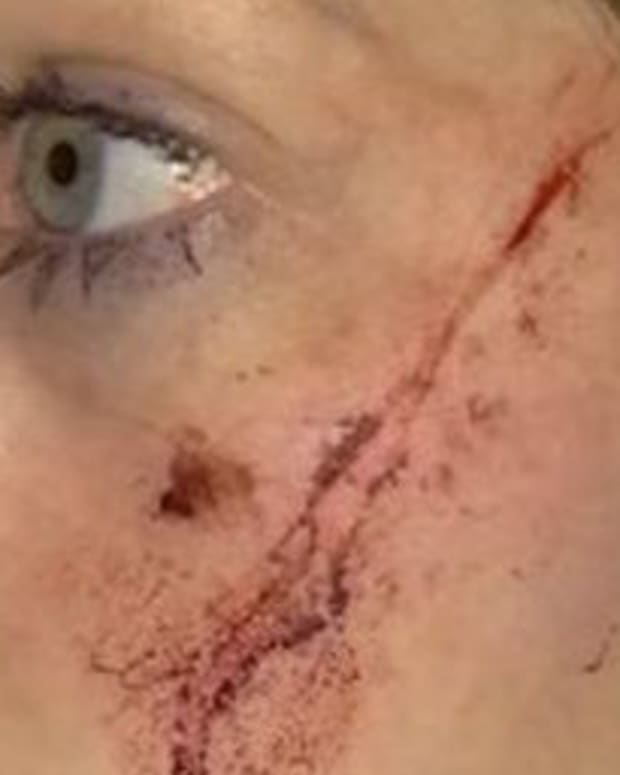 Police: Woman Randomly Slashed On Her Doorstep (Photos) Promo Image