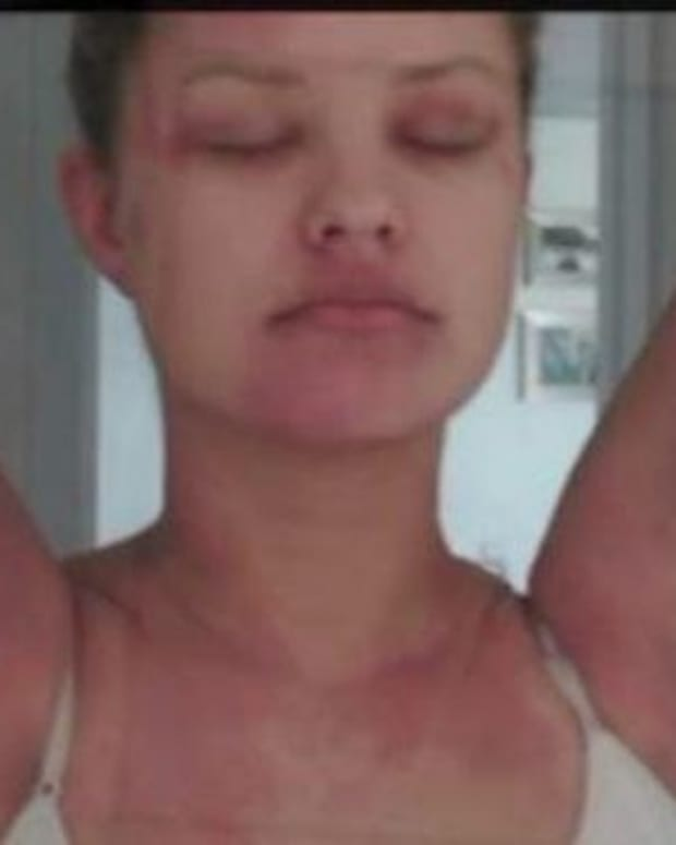 Woman Discovers Bizarre Culprit Causing Her Skin Rashes (Photos) Promo Image