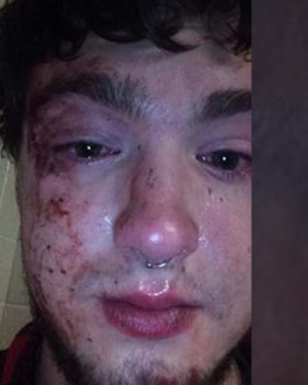 John Mateer with bruised face