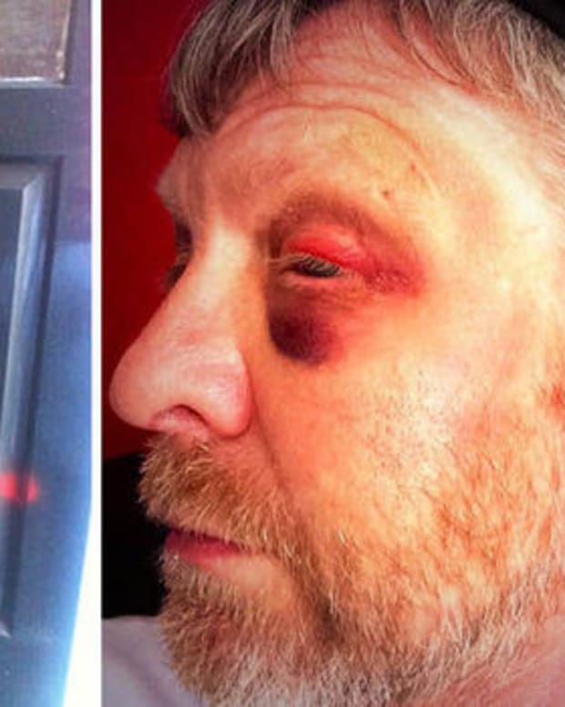 Man Beaten 30 Times In Three Years For Being Jewish Promo Image