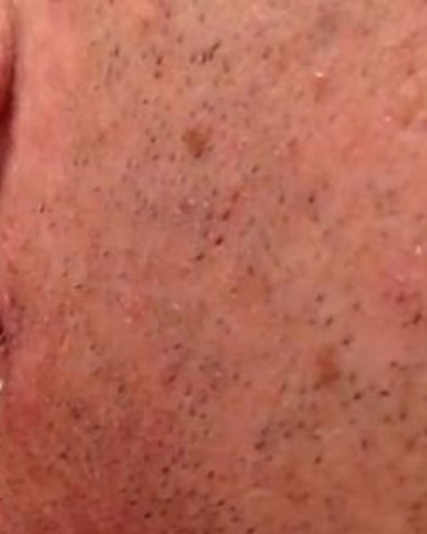 Here's What Happens When You Extract A Months-Old Ingrown Hair (Video) Promo Image